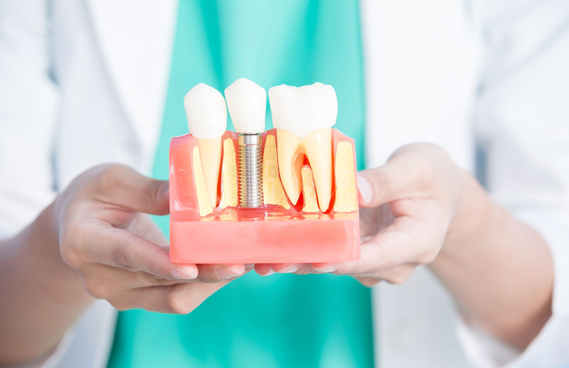 For Patients Who Are Missing Their Own Natural Teeth