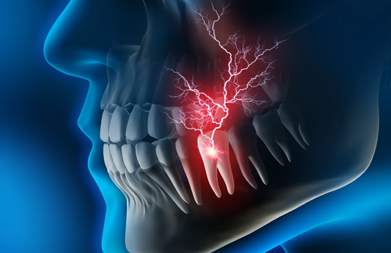 What Are Dental Emergencies 1