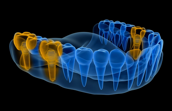 What Are Dental Implants 1