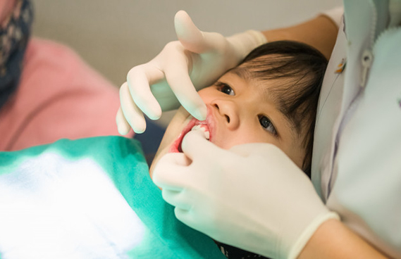 What Are Fluoride Treatments