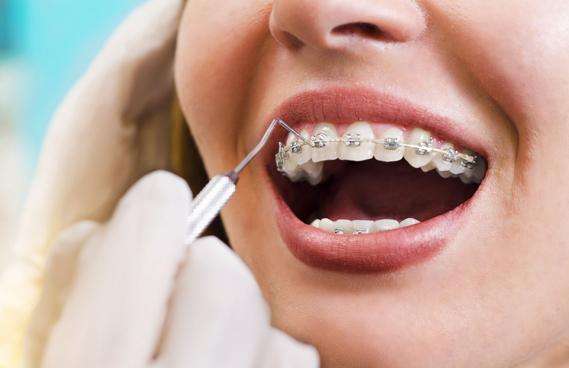What Are Orthodontics
