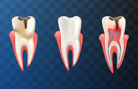 What Is A Complete Root Canal
