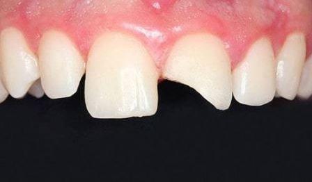 Wellesley Oral Surgery & Implant Broken Tooth