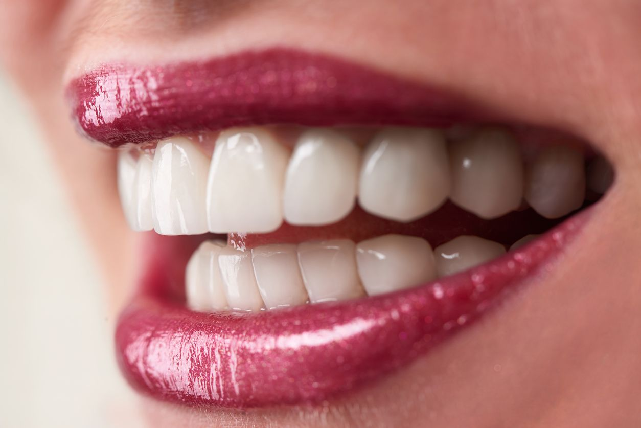 Wellesley Oral Surgery & Implants Woman With Implants